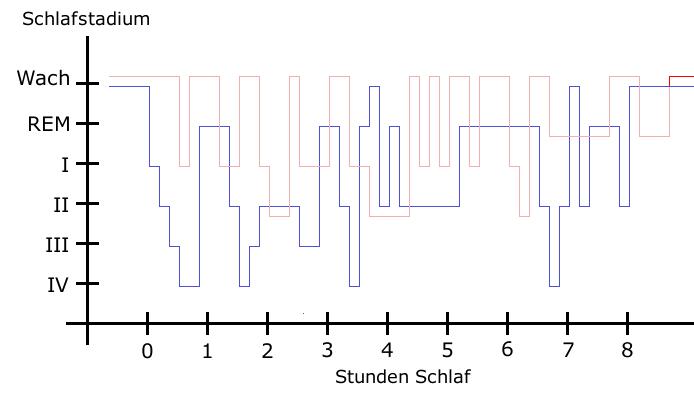 Otc Remedies For Rls Qualia Computing